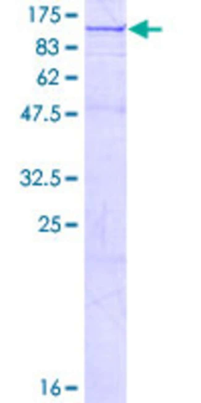Abnova™Human OSBPL11 Full-length ORF (NP_073613.2, 1 a.a. - 747 a.a.) Recombinant Protein with GST-tag at N-terminal 25μg Abnova™Human OSBPL11 Full-length ORF (NP_073613.2, 1 a.a. - 747 a.a.) Recombinant Protein with GST-tag at N-terminal