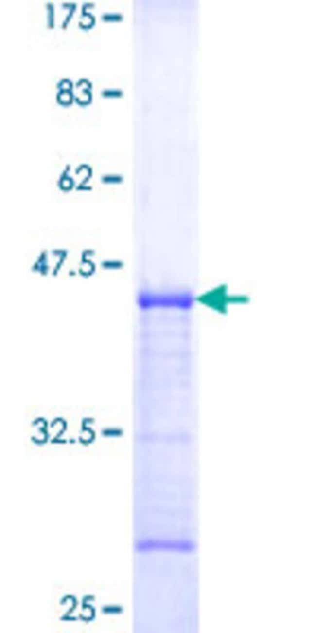Abnova™Human TMEM123 Partial ORF (NP_443164, 34 a.a. - 133 a.a.) Recombinant Protein with GST-tag at N-terminal 10μg Abnova™Human TMEM123 Partial ORF (NP_443164, 34 a.a. - 133 a.a.) Recombinant Protein with GST-tag at N-terminal