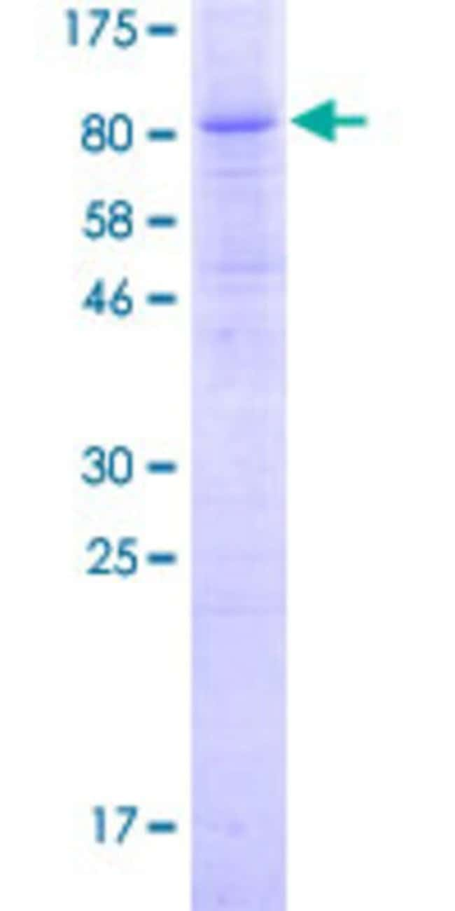 Abnova Human MB21D1 Full-length ORF (ADR83057.1, 1 a.a. - 522 a.a.) Recombinant