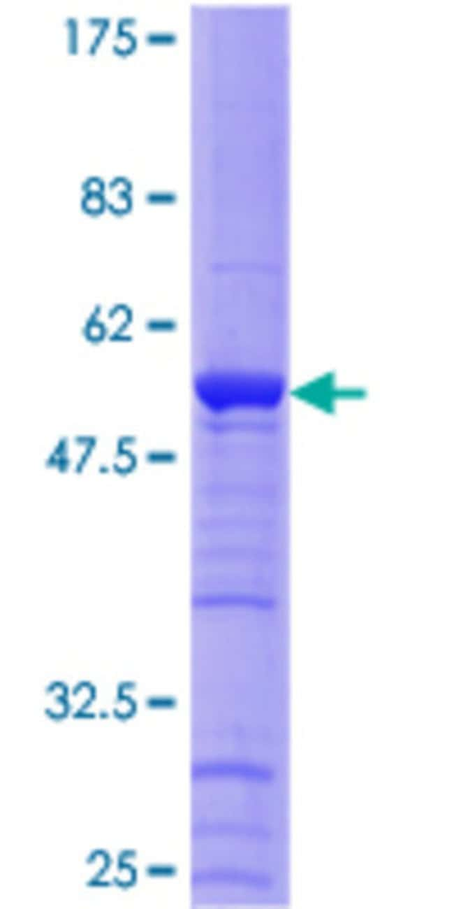 Abnova™Human CCDC5 Full-length ORF (NP_612452.1, 1 a.a. - 278 a.a.) Recombinant Protein with GST-tag at N-terminal 25μg Abnova™Human CCDC5 Full-length ORF (NP_612452.1, 1 a.a. - 278 a.a.) Recombinant Protein with GST-tag at N-terminal