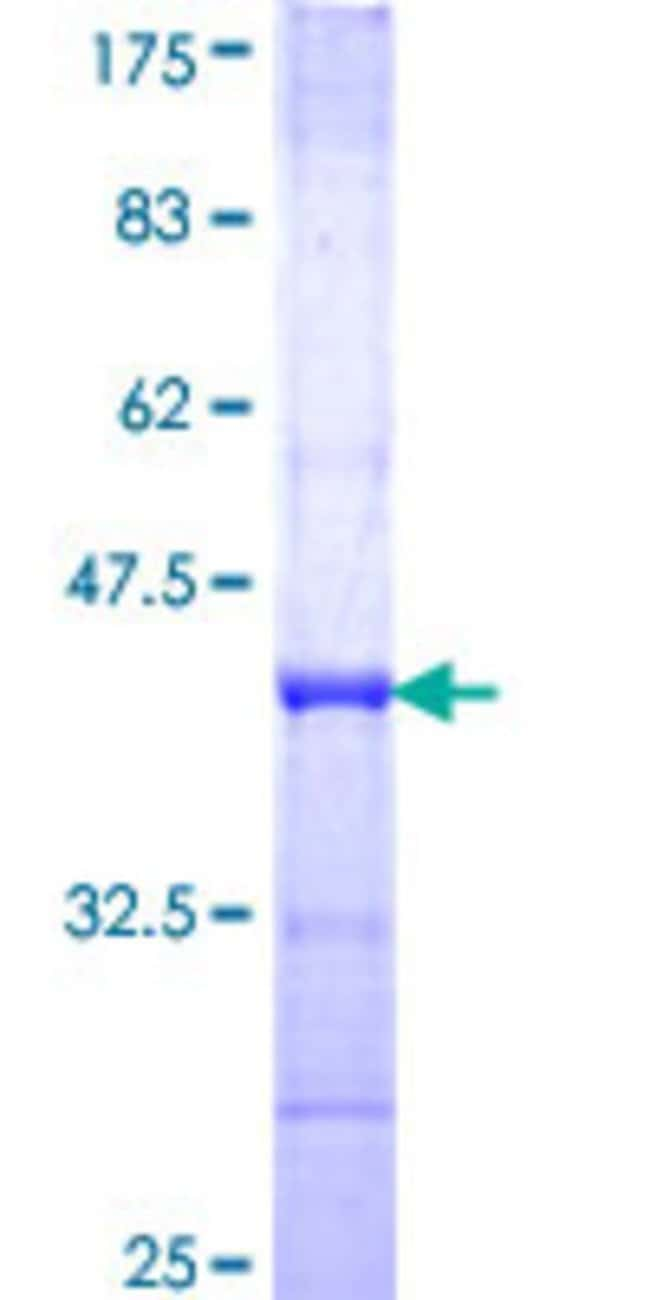 Abnova™Human FCRL1 Partial ORF (NP_443170, 23 a.a. - 117 a.a.) Recombinant Protein with GST-tag at N-terminal 25μg Abnova™Human FCRL1 Partial ORF (NP_443170, 23 a.a. - 117 a.a.) Recombinant Protein with GST-tag at N-terminal