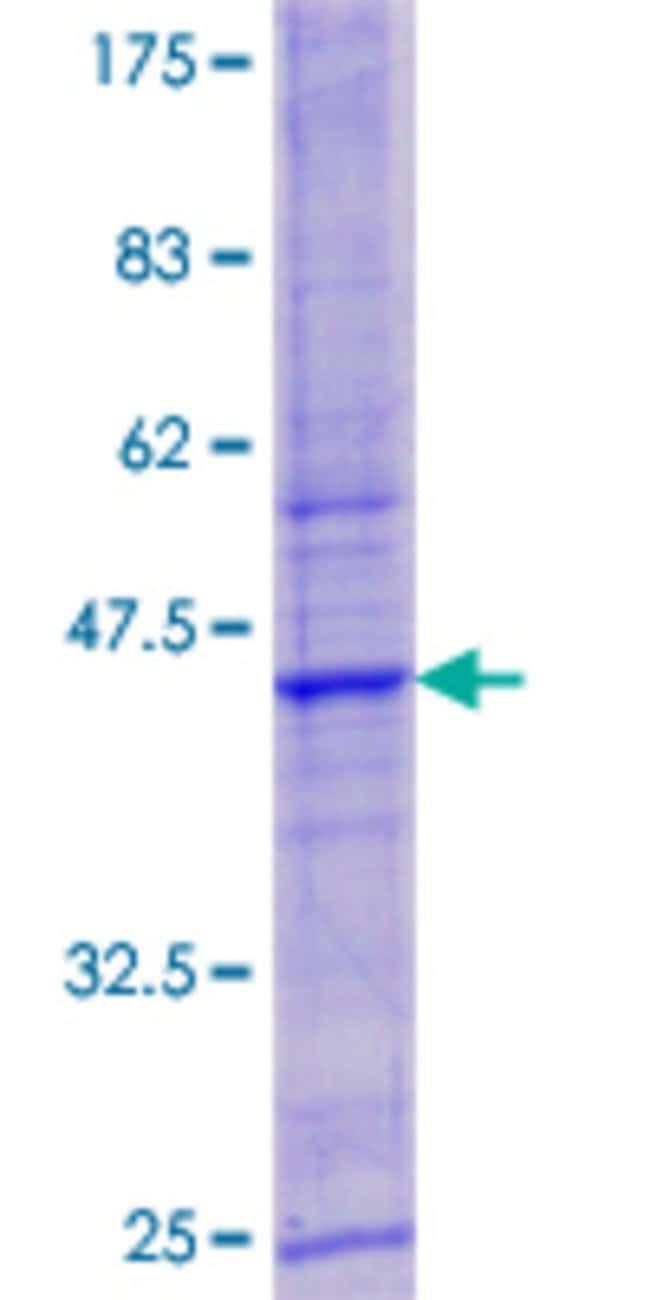 Abnova Human LYSMD3 Full-length ORF (AAH58027.1, 1 a.a. - 127 a.a.) Recombinant