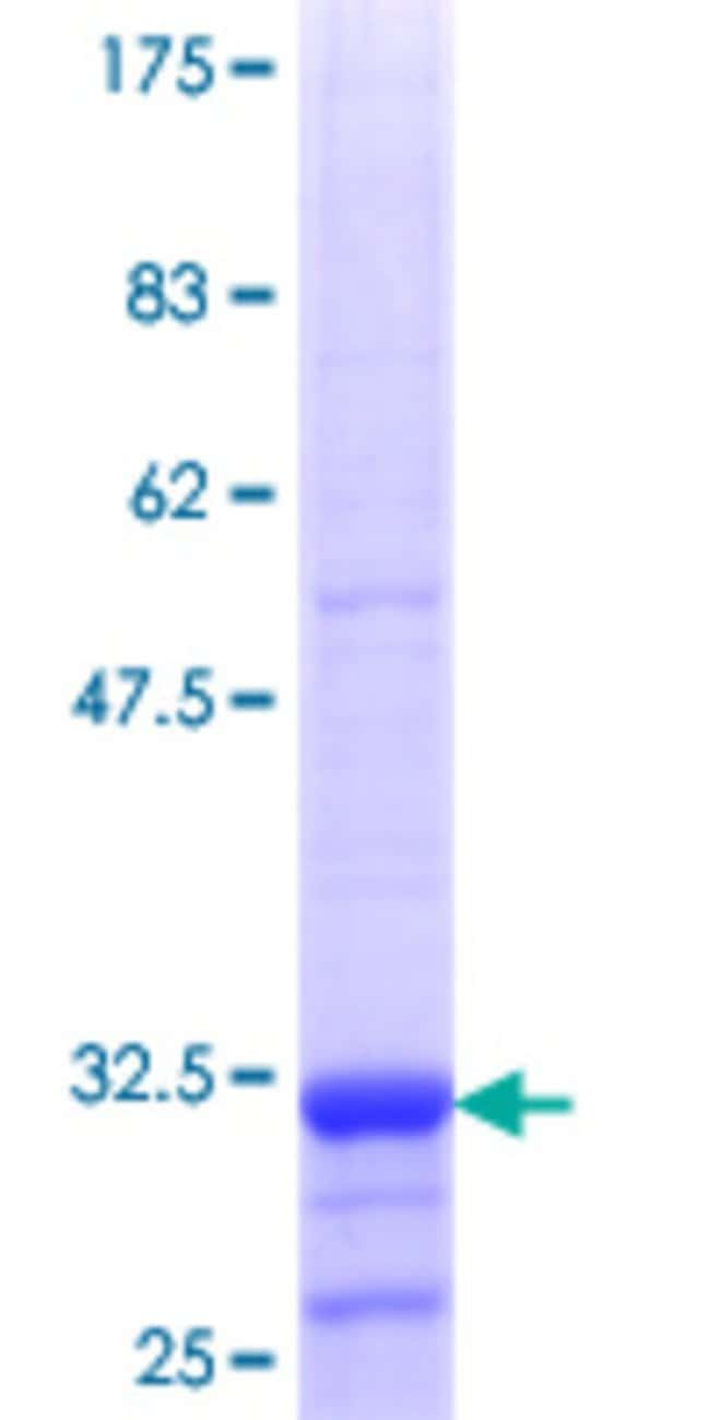 Abnova™Human SLC22A12 Partial ORF (NP_653186.2, 281 a.a. - 349 a.a.) Recombinant Protein with GST-tag at N-terminal 10μg Abnova™Human SLC22A12 Partial ORF (NP_653186.2, 281 a.a. - 349 a.a.) Recombinant Protein with GST-tag at N-terminal