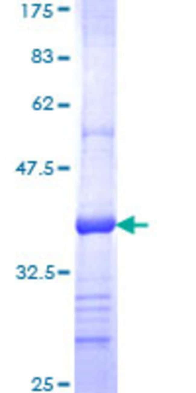Abnova™ Human KLHDC3 Partial ORF (NP_476502, 1 a.a. - 102 a.a.) Recombinant Protein with GST-tag at N-terminal 25μg Abnova™ Human KLHDC3 Partial ORF (NP_476502, 1 a.a. - 102 a.a.) Recombinant Protein with GST-tag at N-terminal