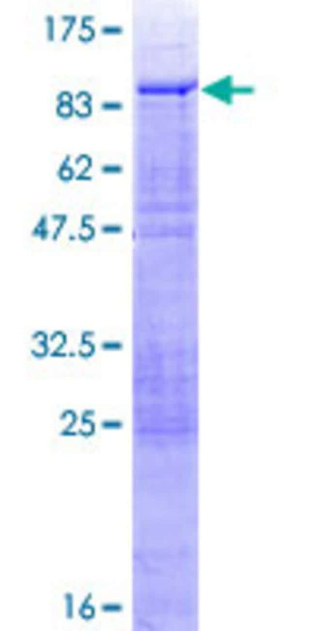 Abnova™Human PHACTR3 Full-length ORF (NP_899069.1, 1 a.a. - 448 a.a.) Recombinant Protein with GST-tag at N-terminal 10μg Abnova™Human PHACTR3 Full-length ORF (NP_899069.1, 1 a.a. - 448 a.a.) Recombinant Protein with GST-tag at N-terminal