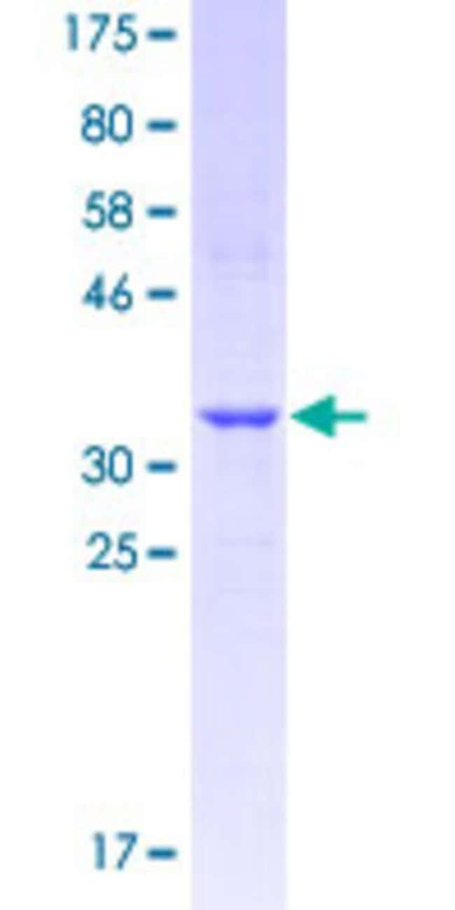 Abnova™Human MAS1L Partial ORF (NP_443199.1, 1 a.a. - 100 a.a.) Recombinant Protein with GST-tag at N-terminal 25μg Abnova™Human MAS1L Partial ORF (NP_443199.1, 1 a.a. - 100 a.a.) Recombinant Protein with GST-tag at N-terminal