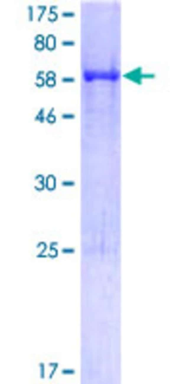 Abnova™Human APOA5 Full-length ORF (AAI01790.1, 1 a.a. - 366 a.a.) Recombinant Protein with GST-tag at N-terminal 25μg Abnova™Human APOA5 Full-length ORF (AAI01790.1, 1 a.a. - 366 a.a.) Recombinant Protein with GST-tag at N-terminal