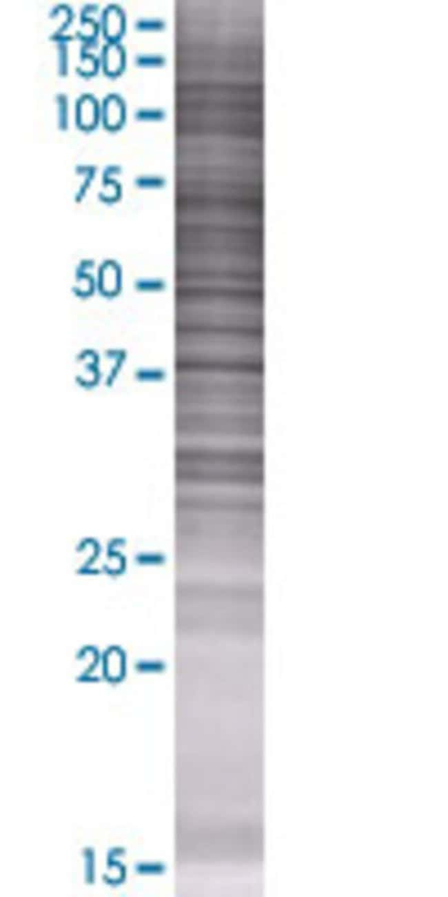 AbnovaAPOA5 293T Cell Transient Overexpression Lysate (Denatured) 100μL:Protein
