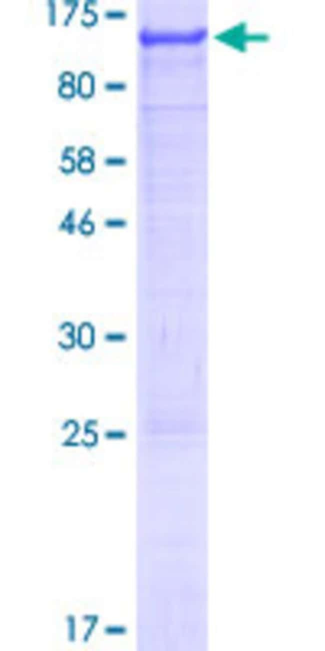 Abnova™Human AGAP2 Full-length ORF (AAH28020.1, 1 a.a. - 836 a.a.) Recombinant Protein with GST-tag at N-terminal 25μg Abnova™Human AGAP2 Full-length ORF (AAH28020.1, 1 a.a. - 836 a.a.) Recombinant Protein with GST-tag at N-terminal