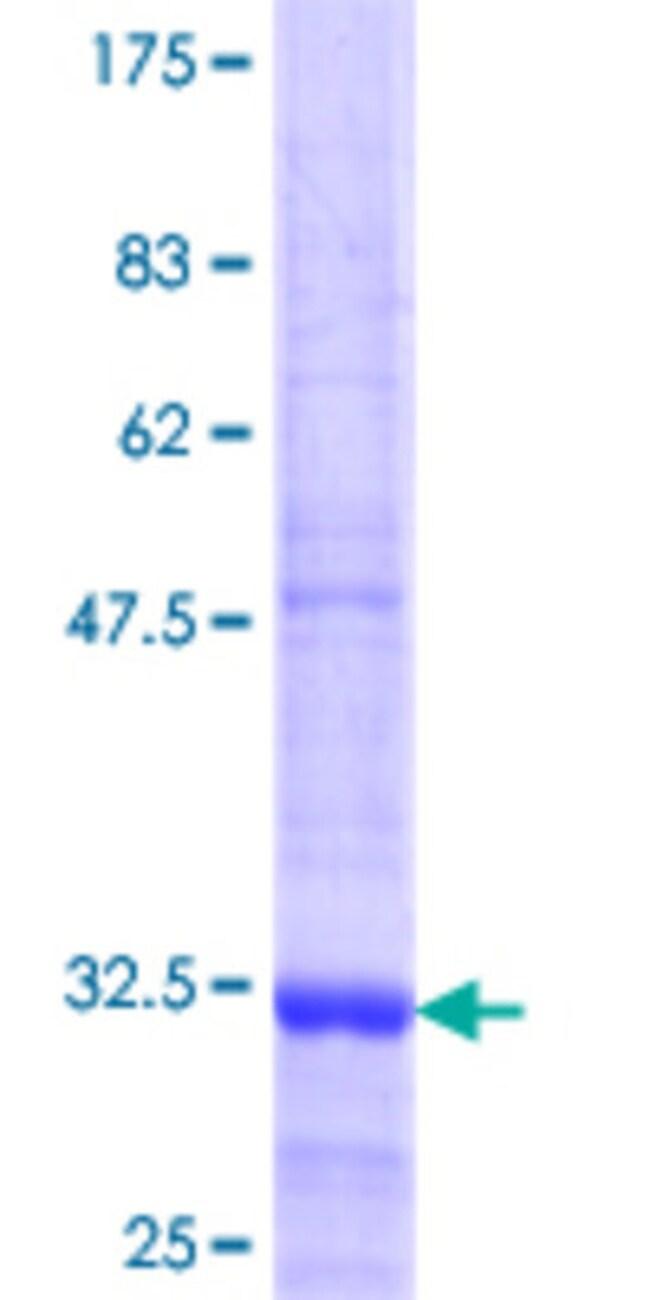 Abnova™Human SH2D1B Partial ORF (NP_444512.2, 54 a.a. - 132 a.a.) Recombinant Protein with GST-tag at N-terminal 25μg Abnova™Human SH2D1B Partial ORF (NP_444512.2, 54 a.a. - 132 a.a.) Recombinant Protein with GST-tag at N-terminal