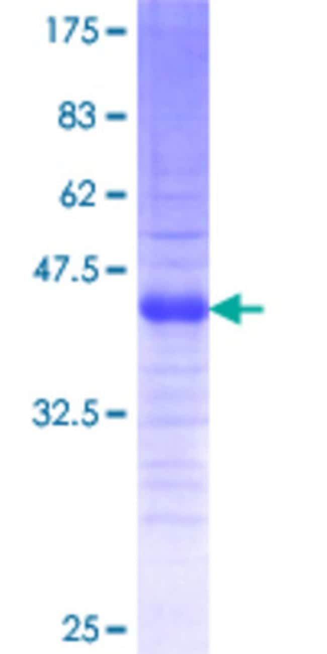 Abnova™Human TWIST2 Partial ORF (AAH33168.1, 1 a.a. - 60 a.a.) Recombinant Protein with GST-tag at N-terminal 10μg Abnova™Human TWIST2 Partial ORF (AAH33168.1, 1 a.a. - 60 a.a.) Recombinant Protein with GST-tag at N-terminal