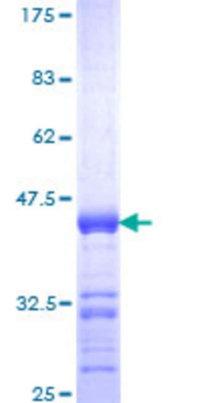 AbnovaHuman ALS2CR19 Partial ORF (NP_689739, 101 a.a. - 209 a.a.) Recombinant