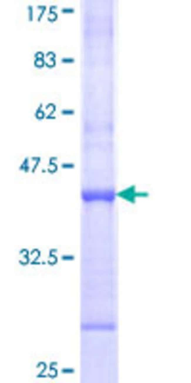 Abnova™Human TRIM6 Partial ORF (NP_001003818, 282 a.a. - 381 a.a.) Recombinant Protein with GST-tag at N-terminal 25μg Abnova™Human TRIM6 Partial ORF (NP_001003818, 282 a.a. - 381 a.a.) Recombinant Protein with GST-tag at N-terminal