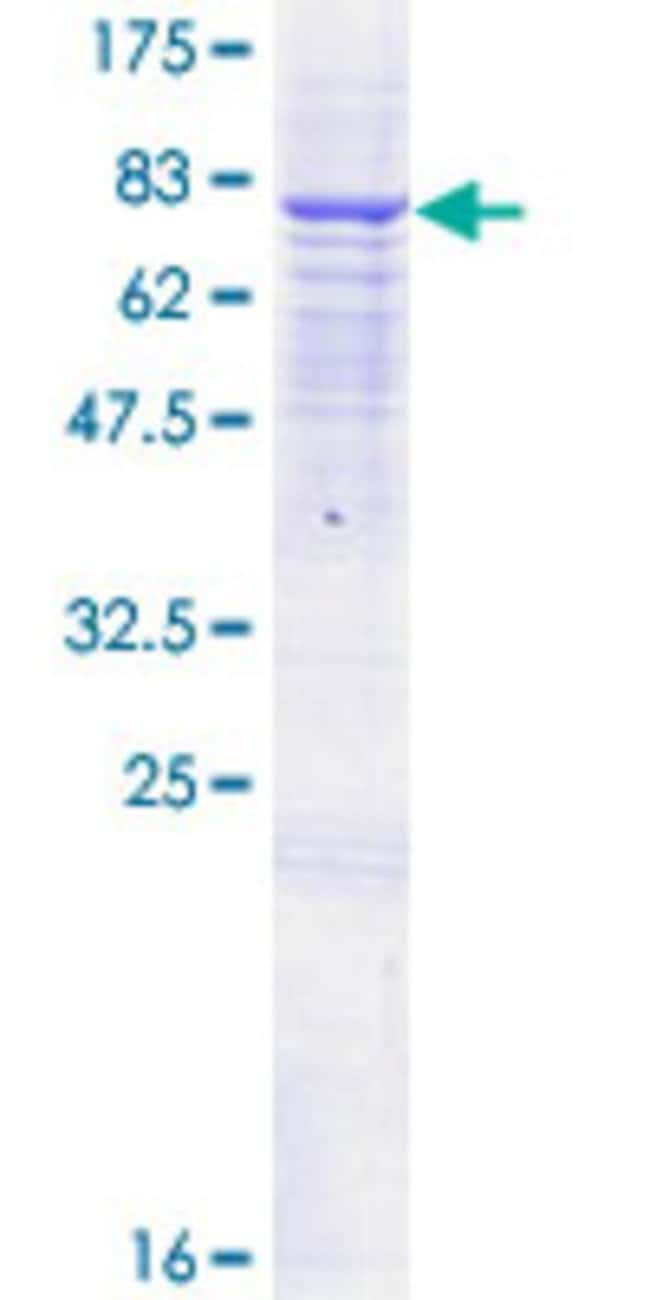 AbnovaHuman ANTXR2 Full-length ORF (NP_477520.2, 1 a.a. - 488 a.a.) Recombinant
