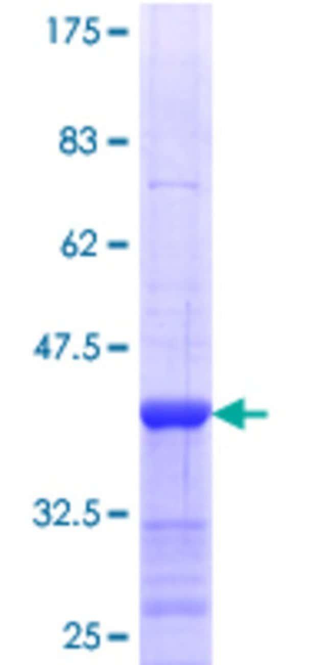 Abnova Human PIK3AP1 Partial ORF (NP_689522.2, 601 a.a. - 700 a.a.) Recombinant