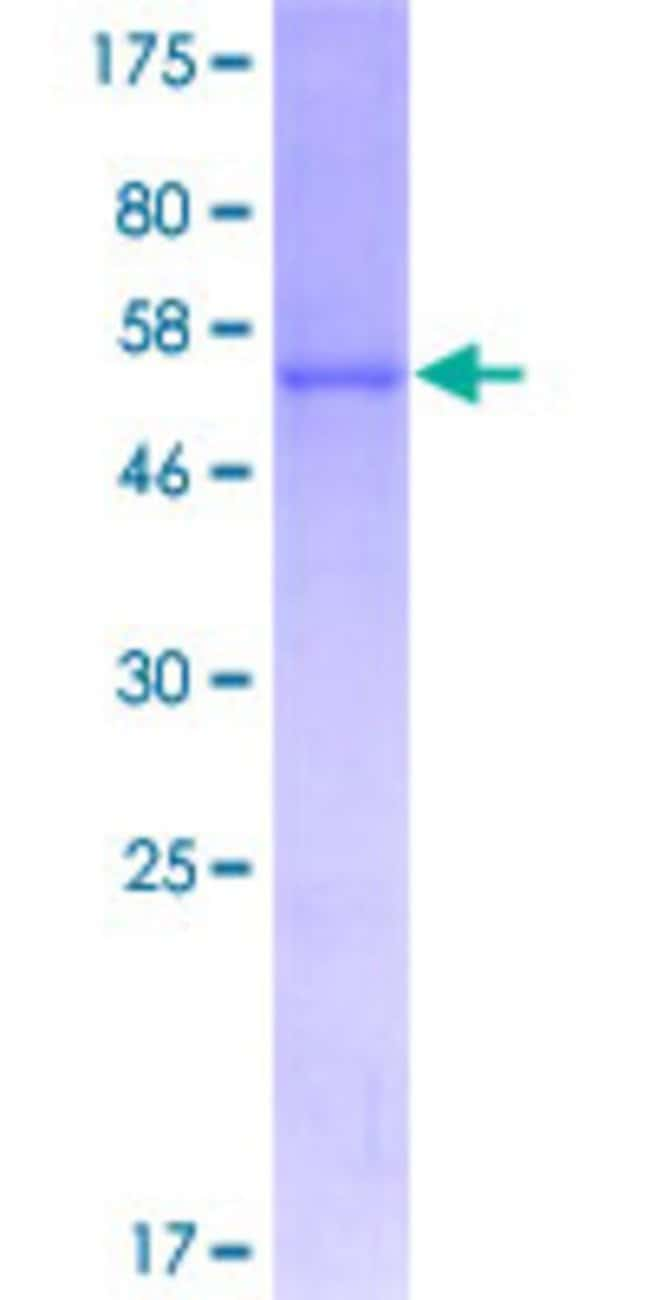 Abnova™Human COMTD1 Full-length ORF (NP_653190.2, 1 a.a. - 262 a.a.) Recombinant Protein with GST-tag at N-terminal 25μg Abnova™Human COMTD1 Full-length ORF (NP_653190.2, 1 a.a. - 262 a.a.) Recombinant Protein with GST-tag at N-terminal