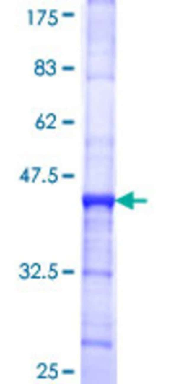Abnova™ Human C10orf4 Partial ORF (NP_660289, 1 a.a. - 100 a.a.) Recombinant Protein with GST-tag at N-terminal 25μg Abnova™ Human C10orf4 Partial ORF (NP_660289, 1 a.a. - 100 a.a.) Recombinant Protein with GST-tag at N-terminal