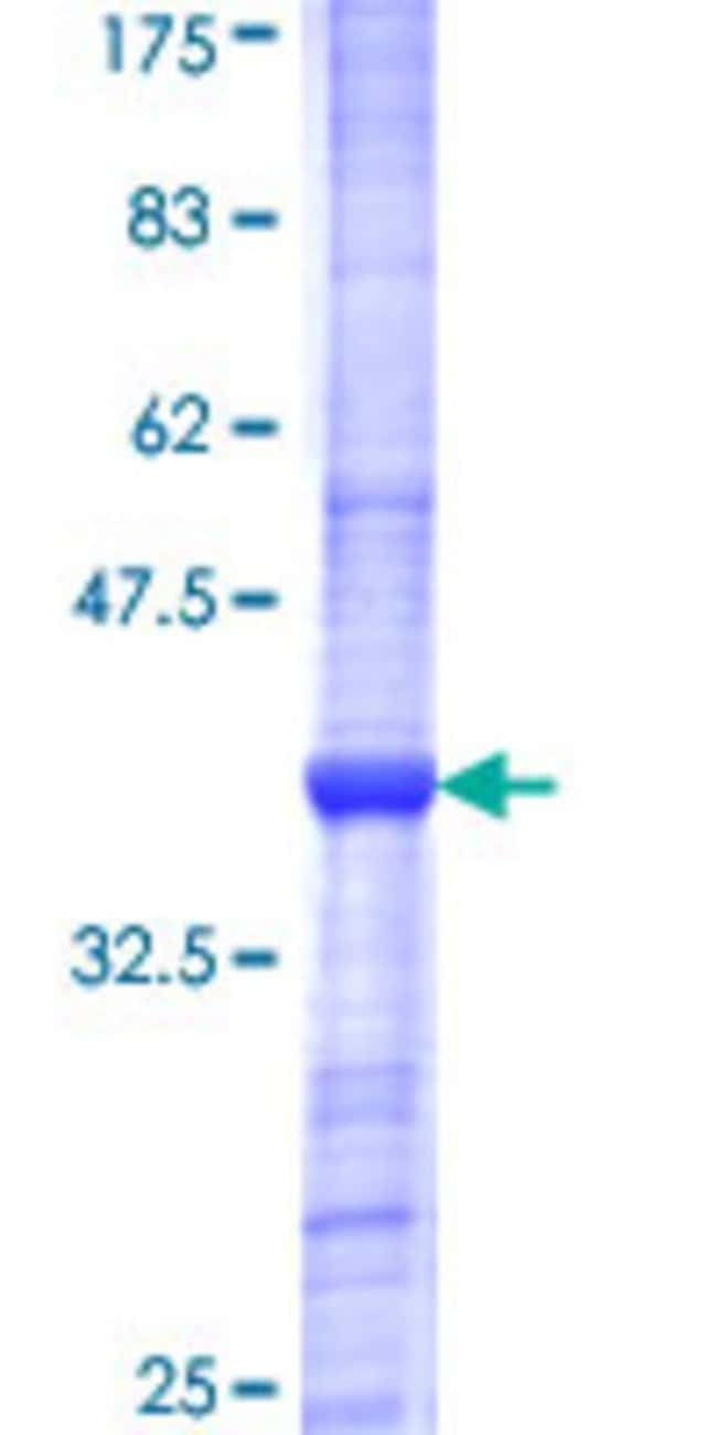Abnova™Human GSTO2 Partial ORF (NP_899062, 63 a.a. - 162 a.a.) Recombinant Protein with GST-tag at N-terminal 25μg Abnova™Human GSTO2 Partial ORF (NP_899062, 63 a.a. - 162 a.a.) Recombinant Protein with GST-tag at N-terminal