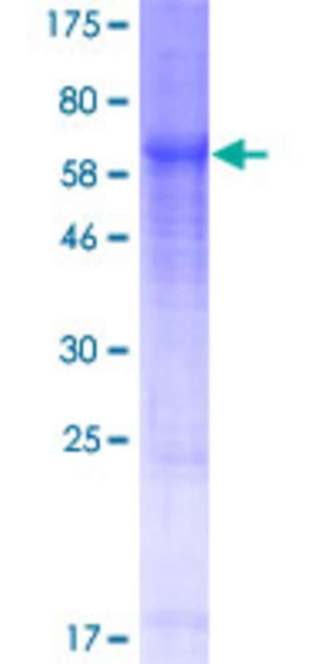Abnova Human KLHDC1 Full-length ORF (NP_751943.1, 1 a.a. - 406 a.a.) Recombinant