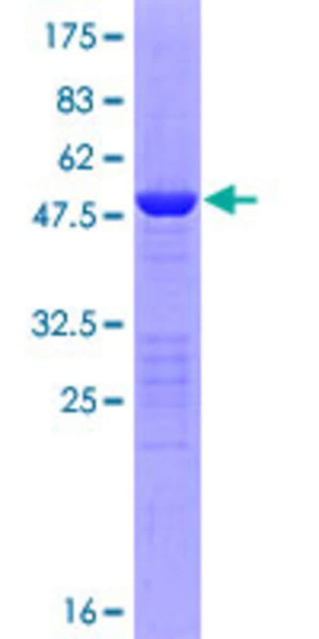 Abnova™Human SENP8 Full-length ORF (NP_660205.2, 1 a.a. - 212 a.a.) Recombinant Protein with GST-tag at N-terminal 10μg Abnova™Human SENP8 Full-length ORF (NP_660205.2, 1 a.a. - 212 a.a.) Recombinant Protein with GST-tag at N-terminal