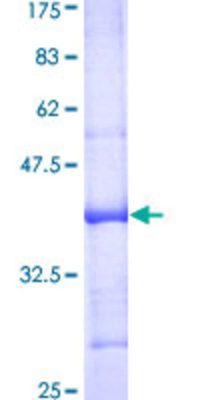 Abnova™Human SEPT12 Partial ORF (AAH35619, 259 a.a. - 358 a.a.) Recombinant Protein with GST-tag at N-terminal 25μg Abnova™Human SEPT12 Partial ORF (AAH35619, 259 a.a. - 358 a.a.) Recombinant Protein with GST-tag at N-terminal