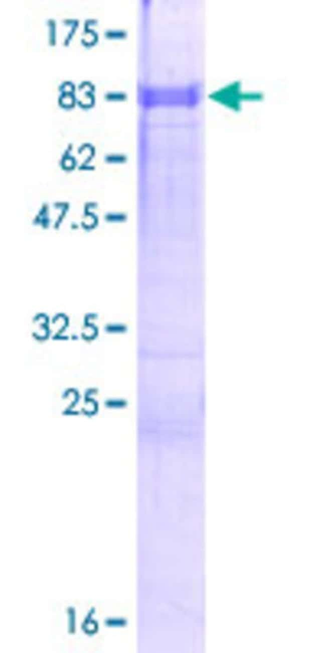 Abnova™Human ZFP3 Full-length ORF (NP_694563.1, 1 a.a. - 502 a.a.) Recombinant Protein with GST-tag at N-terminal 10μg Abnova™Human ZFP3 Full-length ORF (NP_694563.1, 1 a.a. - 502 a.a.) Recombinant Protein with GST-tag at N-terminal