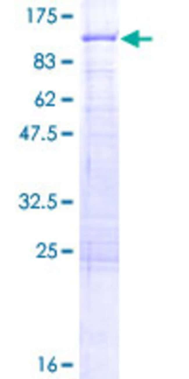 AbnovaHuman ALDH16A1 Full-length ORF (NP_699160.1, 1 a.a. - 802 a.a.) Recombinant