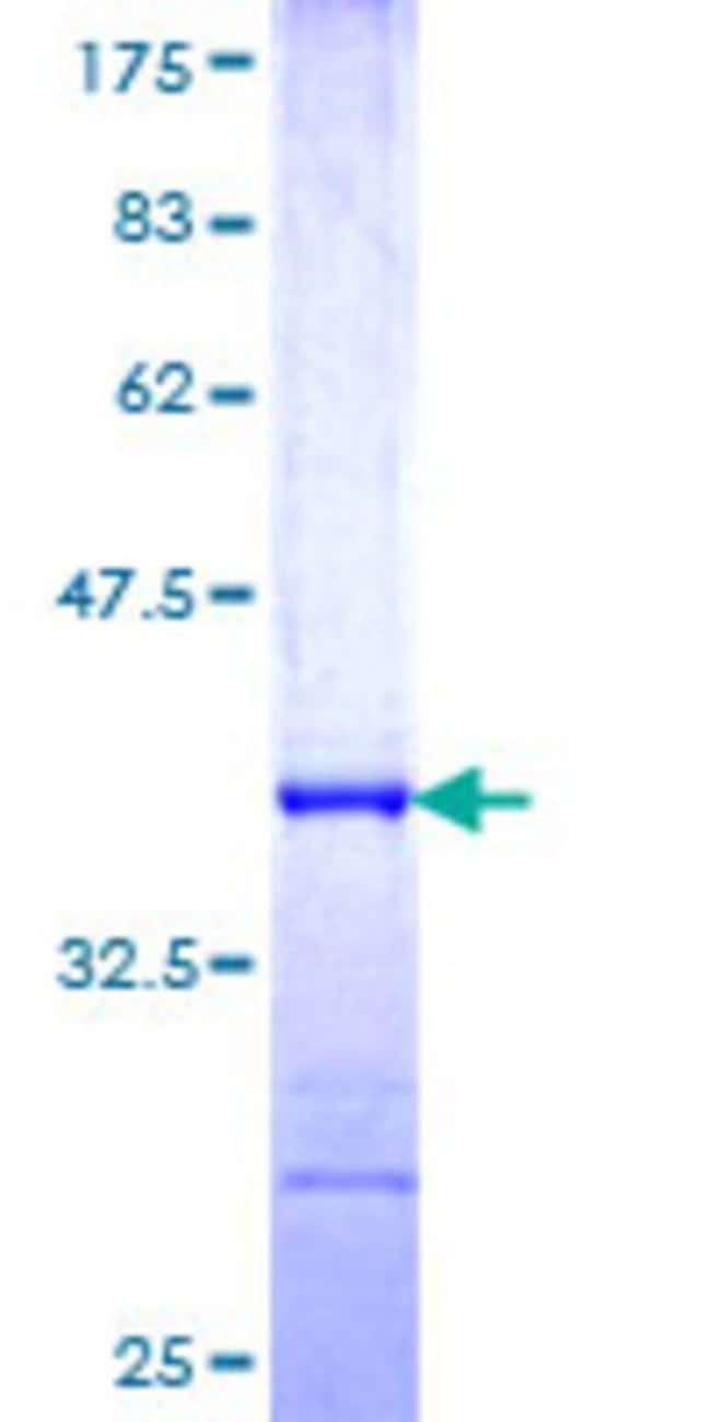 Abnova™Human FBXO27 Partial ORF (NP_849142, 192 a.a. - 283 a.a.) Recombinant Protein with GST-tag at N-terminal 10μg Abnova™Human FBXO27 Partial ORF (NP_849142, 192 a.a. - 283 a.a.) Recombinant Protein with GST-tag at N-terminal