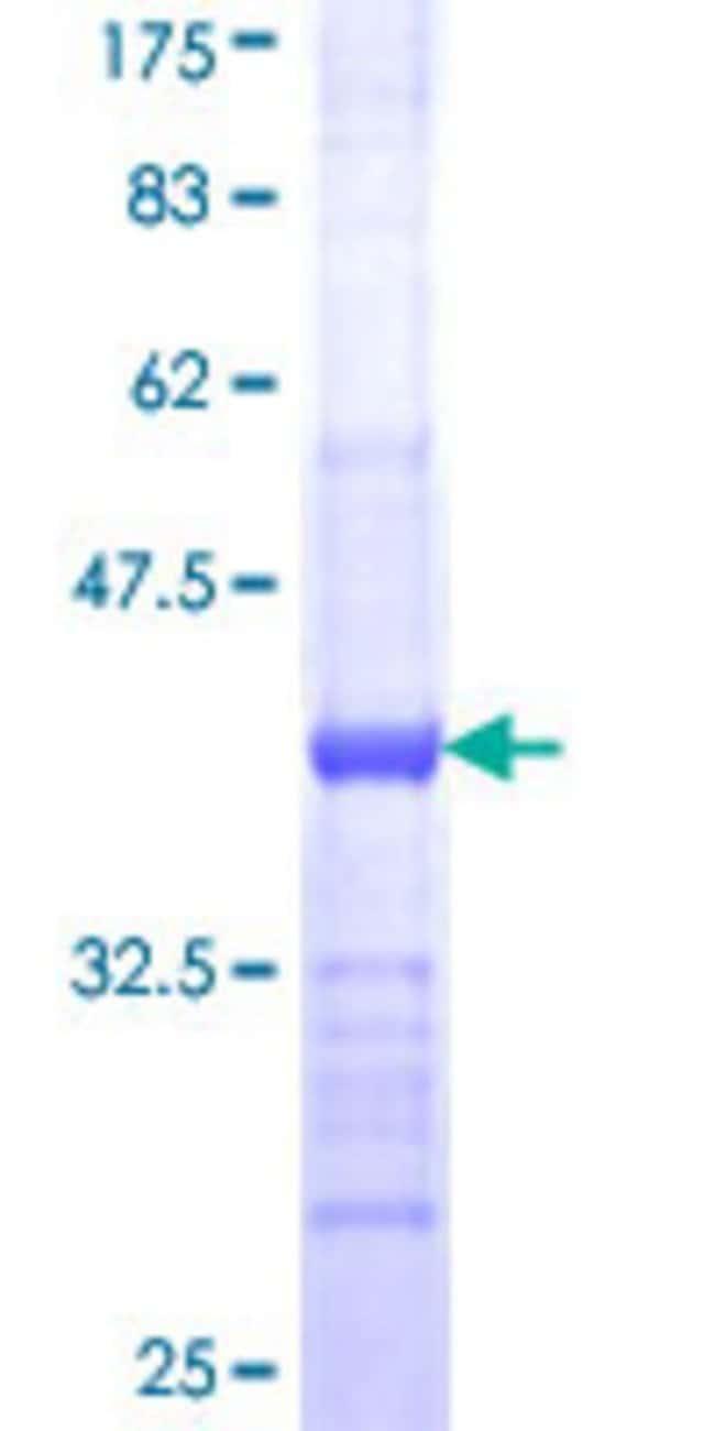 Abnova™Human B3GALT6 Partial ORF (NP_542172, 229 a.a. - 329 a.a.) Recombinant Protein with GST-tag at N-terminal 10μg Abnova™Human B3GALT6 Partial ORF (NP_542172, 229 a.a. - 329 a.a.) Recombinant Protein with GST-tag at N-terminal