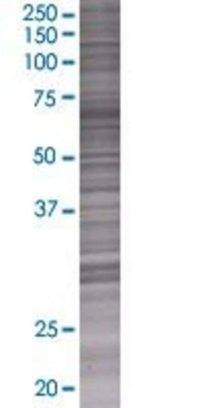 AbnovaATP6V1G3 293T Cell Transient Overexpression Lysate (Denatured) 100μL:Protein