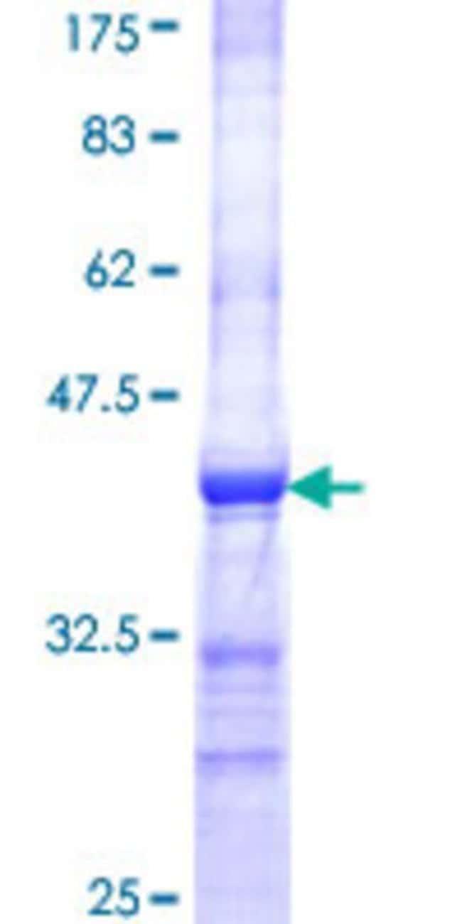Abnova Human IQGAP3 Partial ORF (NP_839943, 602 a.a. - 698 a.a.) Recombinant