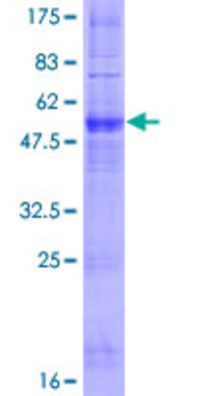 Abnova™Human OR6N1 Full-length ORF (NP_001005185.1, 1 a.a. - 312 a.a.) Recombinant Protein with GST-tag at N-terminal 25μg Abnova™Human OR6N1 Full-length ORF (NP_001005185.1, 1 a.a. - 312 a.a.) Recombinant Protein with GST-tag at N-terminal