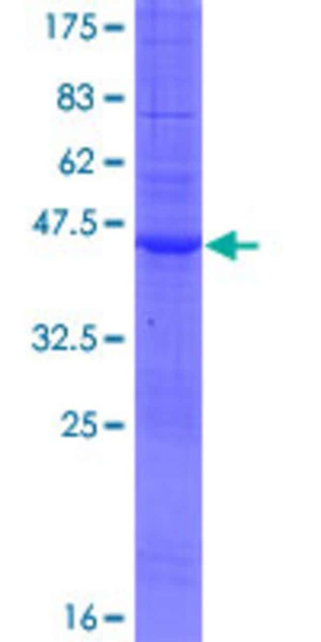 Abnova™Human C20orf141 Full-length ORF (NP_542777.1, 1 a.a. - 165 a.a.) Recombinant Protein with GST-tag at N-terminal 25μg Abnova™Human C20orf141 Full-length ORF (NP_542777.1, 1 a.a. - 165 a.a.) Recombinant Protein with GST-tag at N-terminal