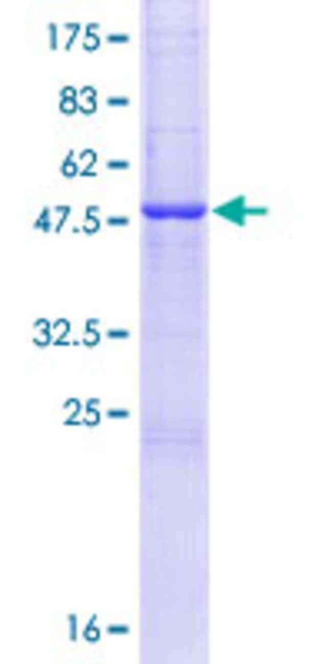 Abnova™Human C20orf71 Full-length ORF (NP_001035904.1, 1 a.a. - 218 a.a.) Recombinant Protein with GST-tag at N-terminal 10μg Abnova™Human C20orf71 Full-length ORF (NP_001035904.1, 1 a.a. - 218 a.a.) Recombinant Protein with GST-tag at N-terminal