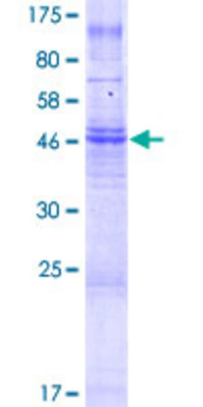 Abnova™Human TMEM150 Full-length ORF (NP_001026908.1, 1 a.a. - 271 a.a.) Recombinant Protein with GST-tag at N-terminal 25μg Abnova™Human TMEM150 Full-length ORF (NP_001026908.1, 1 a.a. - 271 a.a.) Recombinant Protein with GST-tag at N-terminal