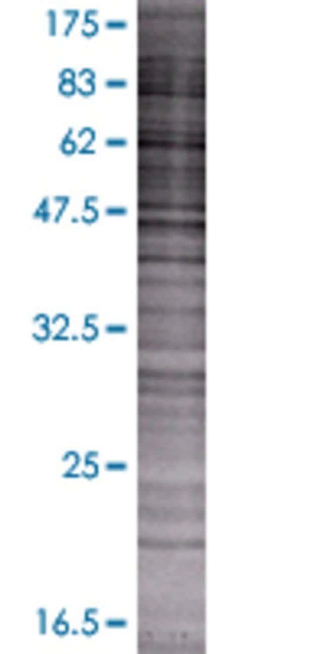 Abnova LOC129530 293T Cell Transient Overexpression Lysate (Denatured)