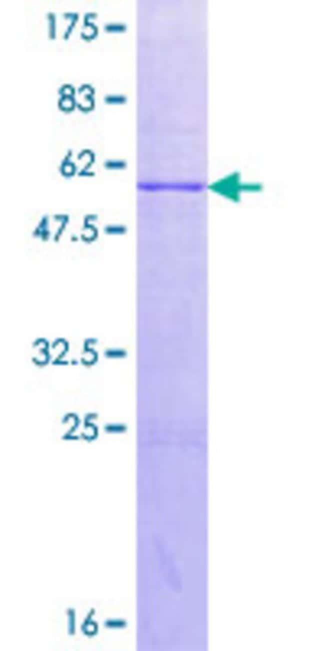 AbnovaHuman ACMSD Full-length ORF (AAH16018.1, 1 a.a. - 278 a.a.) Recombinant