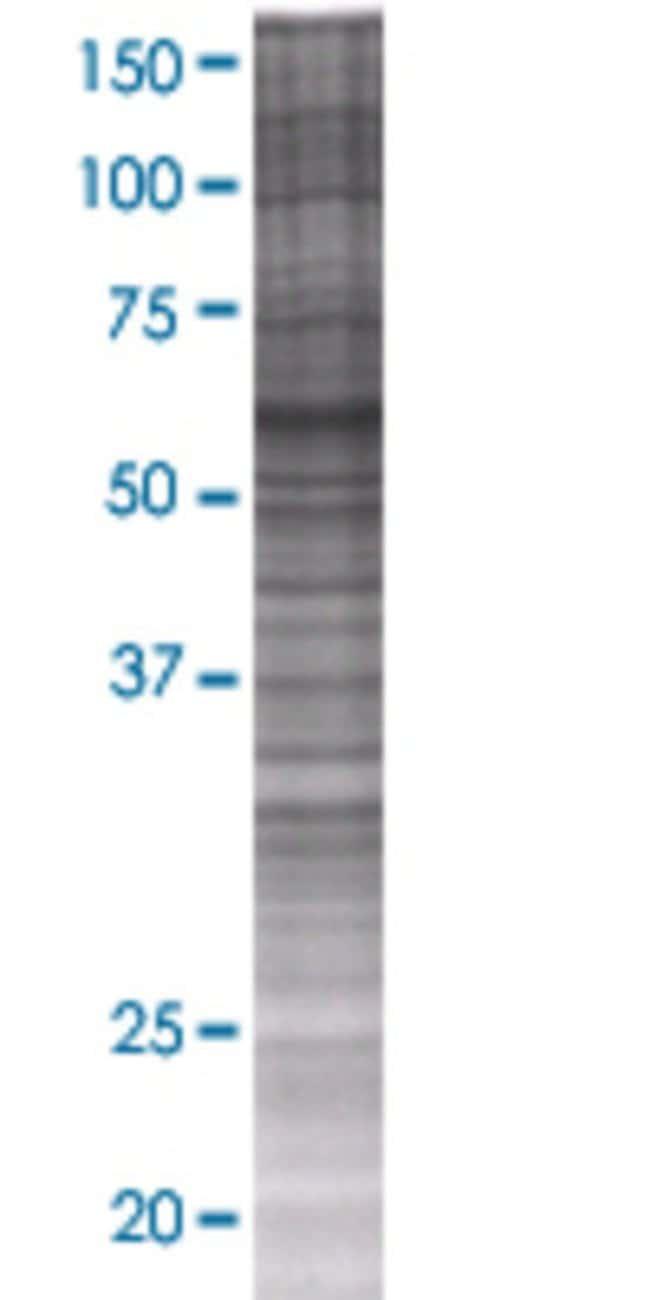 Abnova ICA1L 293T Cell Transient Overexpression Lysate (Denatured) 100µL:Life