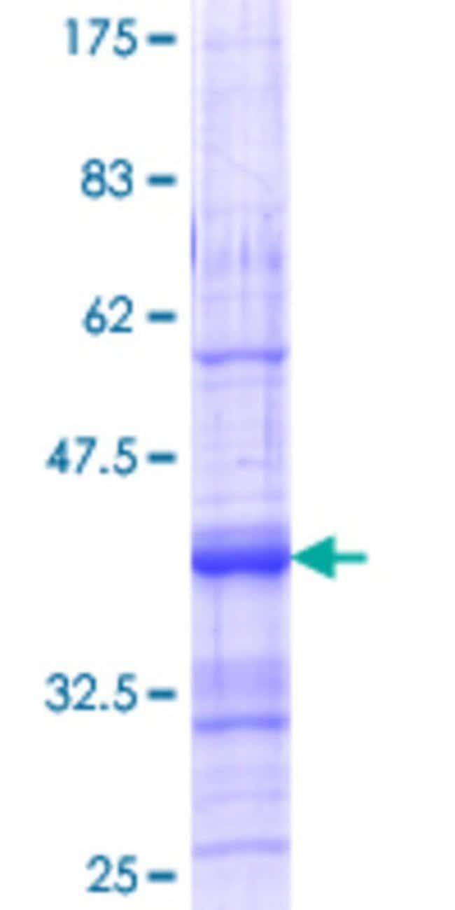 AbnovaHuman ACVR1C Partial ORF (AAH22530.1, 23 a.a. - 112 a.a.) Recombinant