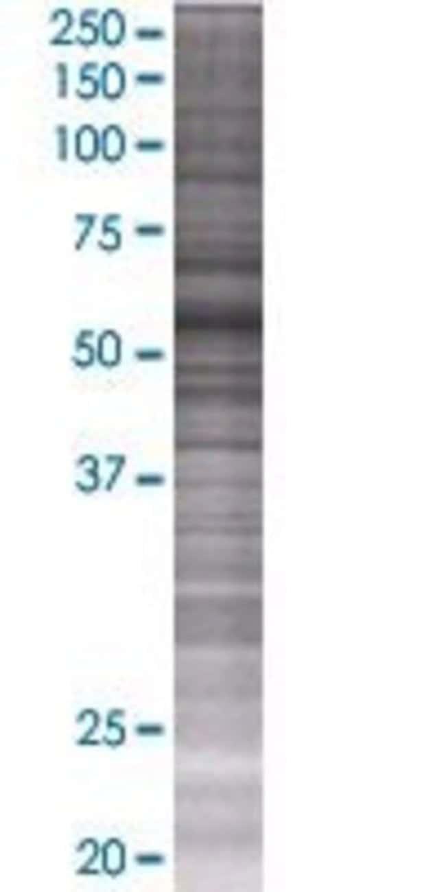 Abnova MDH1B 293T Cell Transient Overexpression Lysate (Denatured) 100µL:Life