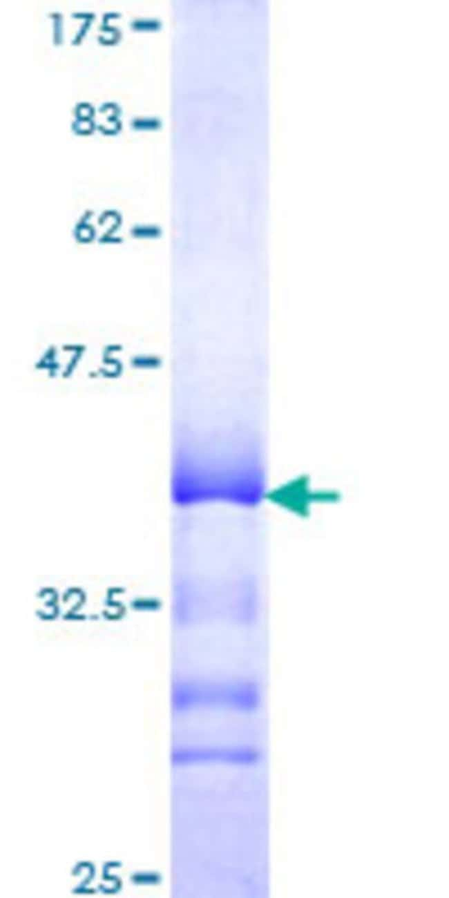 Abnova™Human GPR175 Partial ORF (NP_057456, 281 a.a. - 371 a.a.) Recombinant Protein with GST-tag at N-terminal 10μg Abnova™Human GPR175 Partial ORF (NP_057456, 281 a.a. - 371 a.a.) Recombinant Protein with GST-tag at N-terminal