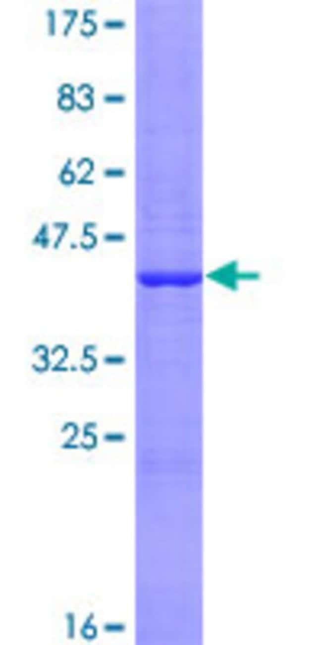 Abnova™Human NUDT16 Full-length ORF (NP_689608.1, 1 a.a. - 162 a.a.) Recombinant Protein with GST-tag at N-terminal 25μg Abnova™Human NUDT16 Full-length ORF (NP_689608.1, 1 a.a. - 162 a.a.) Recombinant Protein with GST-tag at N-terminal