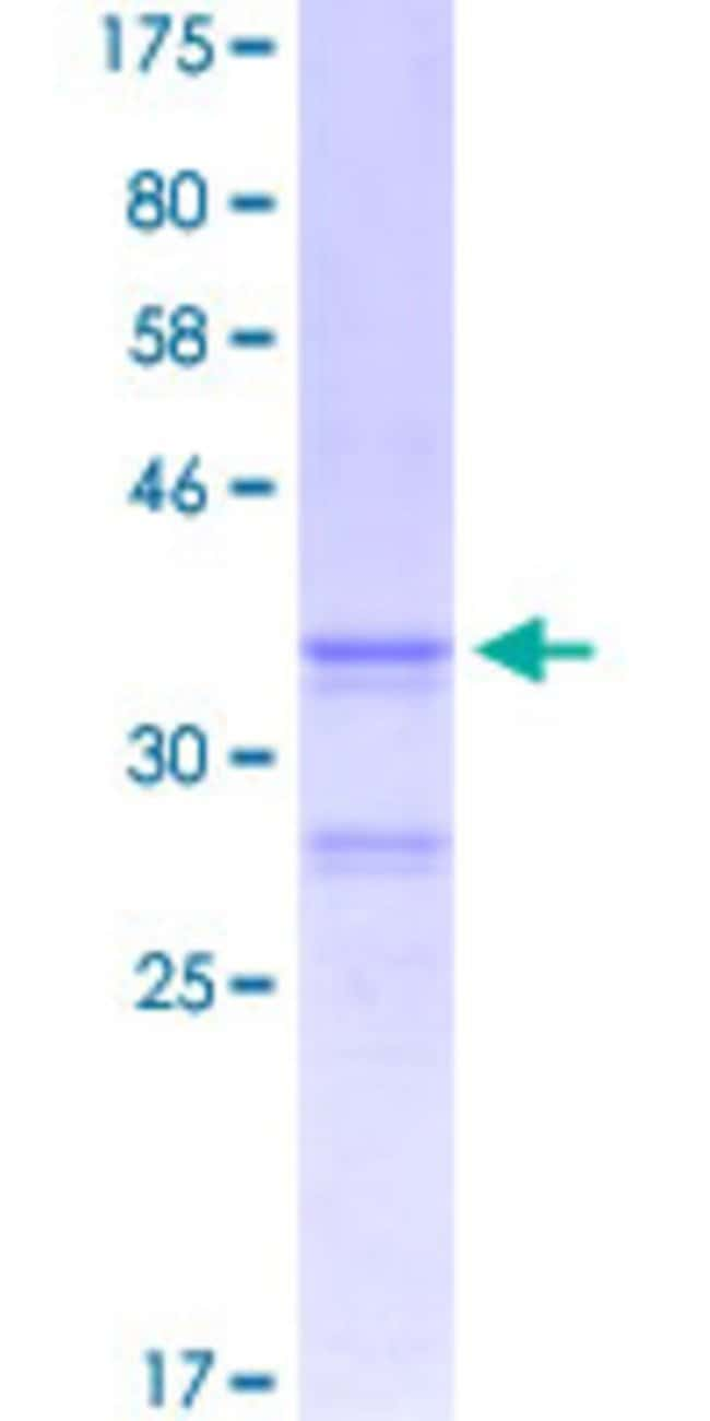 Abnova™Human GRK7 Partial ORF (NP_631948.1, 1 a.a. - 100 a.a.) Recombinant Protein with GST-tag at N-terminal 10μg Abnova™Human GRK7 Partial ORF (NP_631948.1, 1 a.a. - 100 a.a.) Recombinant Protein with GST-tag at N-terminal