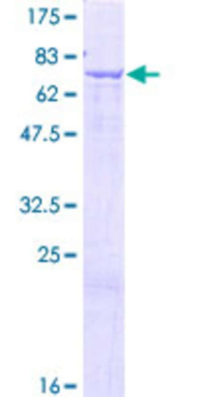 Abnova™Human GLYCTK Full-length ORF (NP_660305.2, 1 a.a. - 523 a.a.) Recombinant Protein with GST-tag at N-terminal 10μg Abnova™Human GLYCTK Full-length ORF (NP_660305.2, 1 a.a. - 523 a.a.) Recombinant Protein with GST-tag at N-terminal