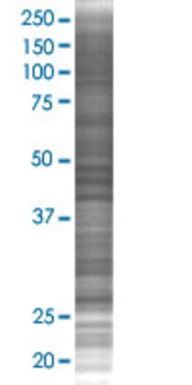 Abnova H1FOO 293T Cell Transient Overexpression Lysate (Denatured) (T02)