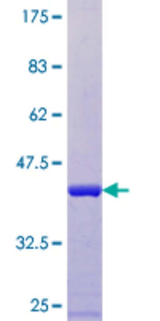 AbnovaHuman ARL9 Full-length ORF (NP_996802.1, 1 a.a. - 123 a.a.) Recombinant