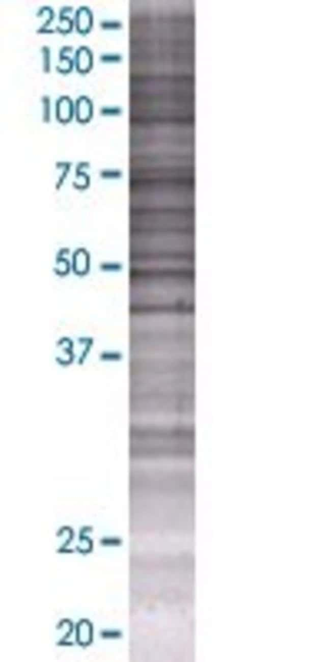 AbnovaAASDH 293T Cell Transient Overexpression Lysate (Denatured) (T01)