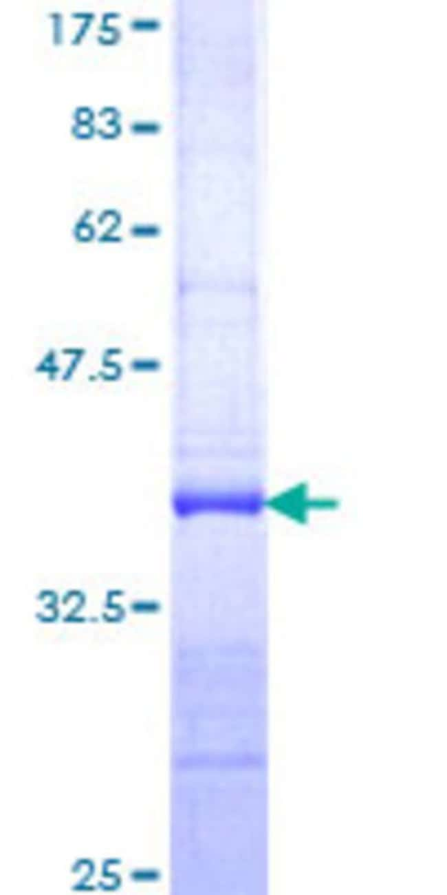 Abnova™Human FLJ39155 Partial ORF (NP_689616, 914 a.a. - 1001 a.a.) Recombinant Protein with GST-tag at N-terminal 25μg Abnova™Human FLJ39155 Partial ORF (NP_689616, 914 a.a. - 1001 a.a.) Recombinant Protein with GST-tag at N-terminal