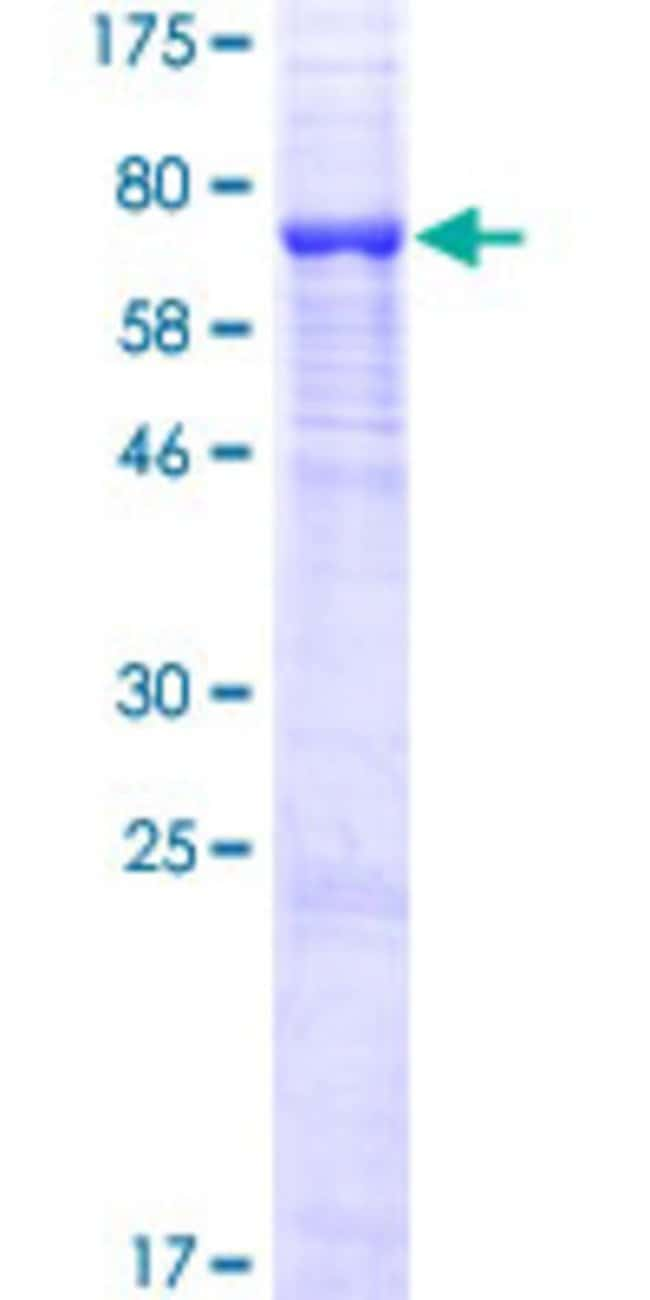 Abnova™Human UGT3A1 Full-length ORF (AAH68446.1, 1 a.a. - 523 a.a.) Recombinant Protein with GST-tag at N-terminal 10μg Abnova™Human UGT3A1 Full-length ORF (AAH68446.1, 1 a.a. - 523 a.a.) Recombinant Protein with GST-tag at N-terminal