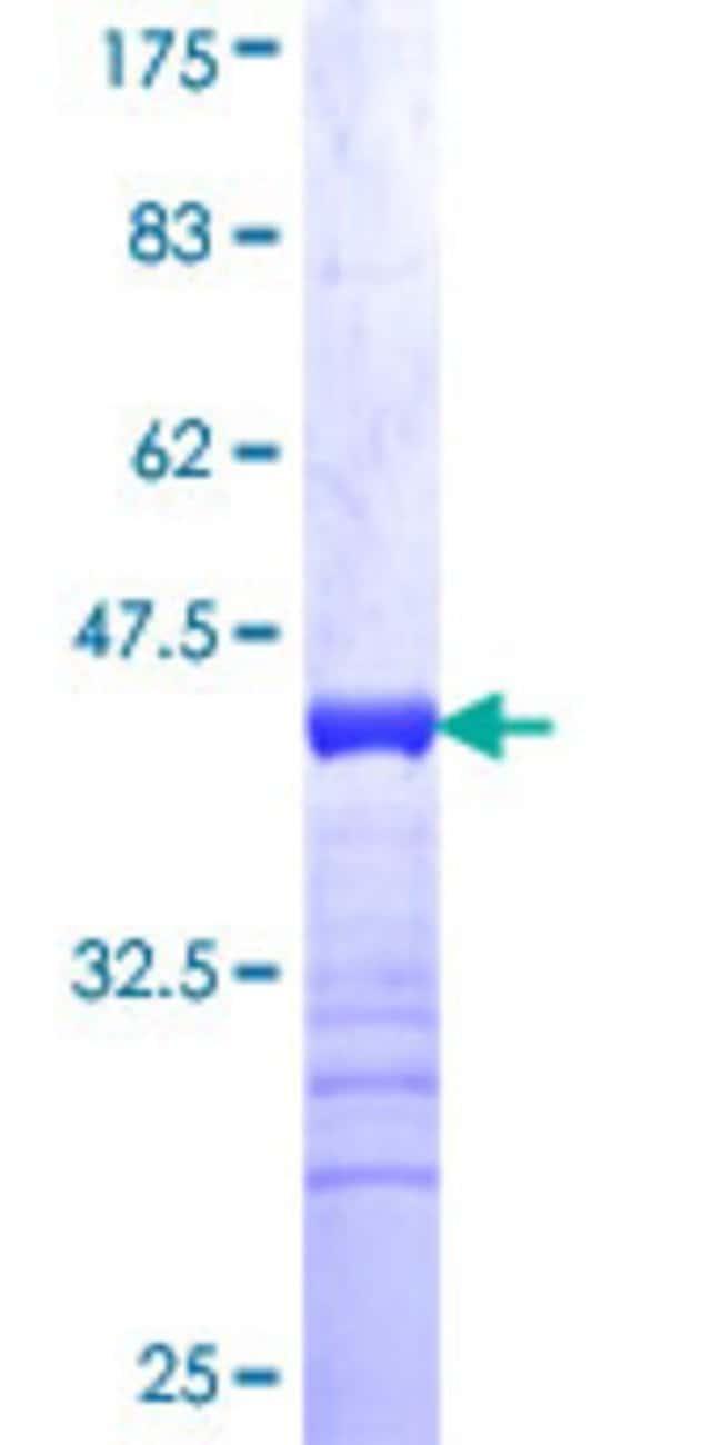 Abnova Human JMY Partial ORF (NP_689618, 535 a.a. - 634 a.a.) Recombinant